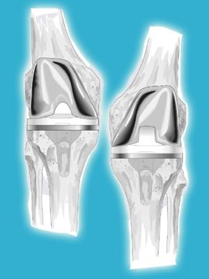 DePuy PFC Sigma Knee